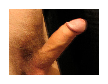 corrected curved penis