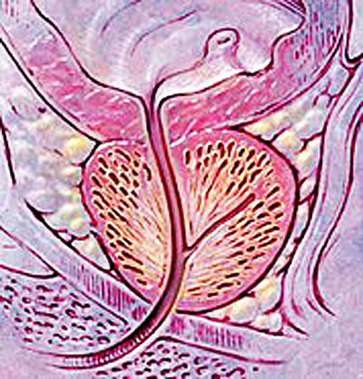enlarged prostate symptoms vs normal prostate