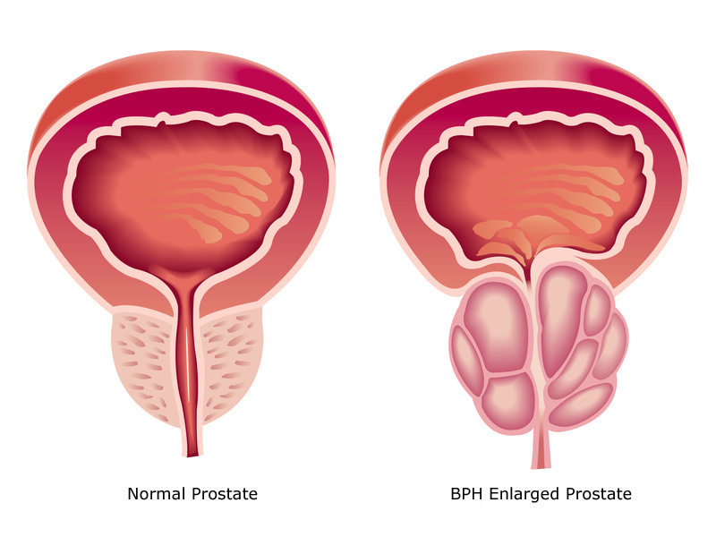 BPH enlarged prostae vs normal