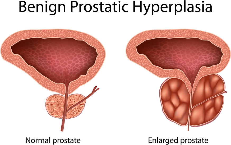 saw palmetto, BPH, and prostate health