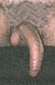 peyronies disease causing a downward penis bending