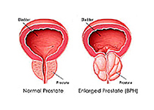 Prostate Swelling http://www.prostate-massage-and-health.com/swollen-prostate-problems.html