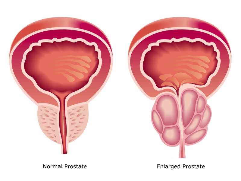 prostate gland normal and enlarged