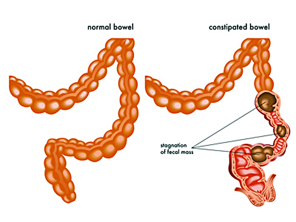 constipation and a normal bowel