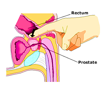 prostate massage vs digital rectal exam