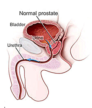 body work for prostate health