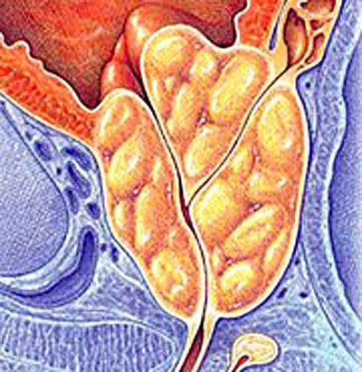 enlarged prostate treatment diagram