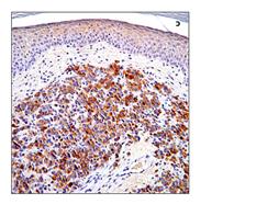 prostate specific antigen PSA 2