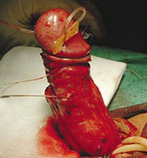 bent penis surgery