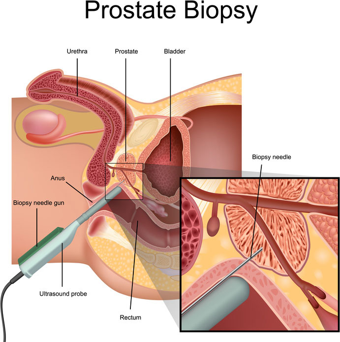 prostate biopsy and the prostate examination