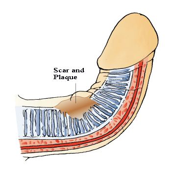 penis curvature caused by scar and/or plaque formation
