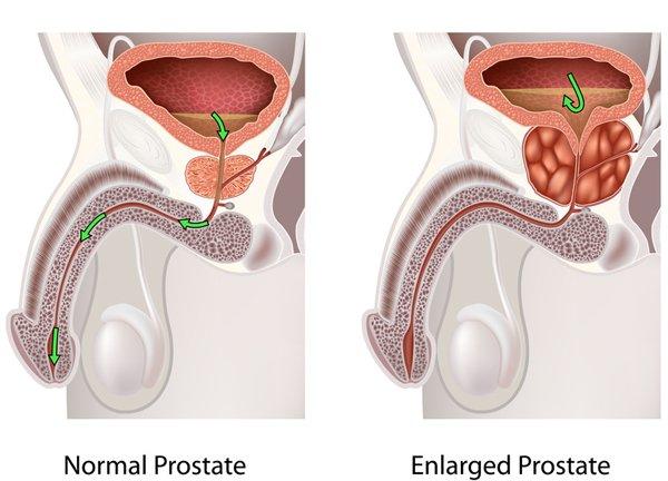 Advanced BPH restricts urine flow