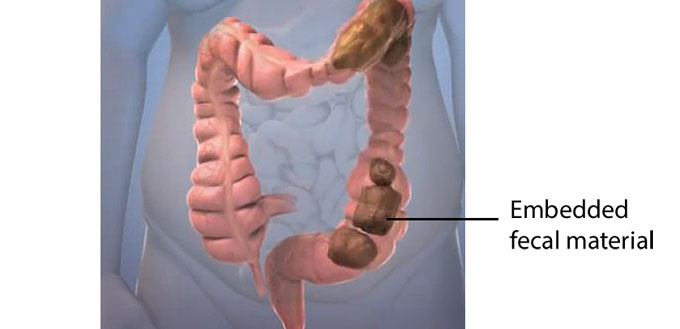 does colon cleansing work for prostatitis?