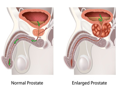 natural treatment for enlarged prostate