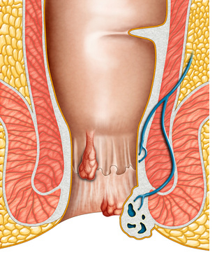 natural hemorrhoid treatment