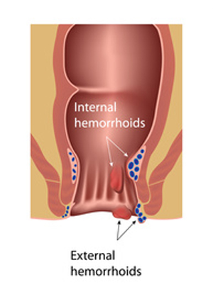 external and internal hemorrhoids