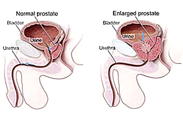 enlarged prostate treatment diagram