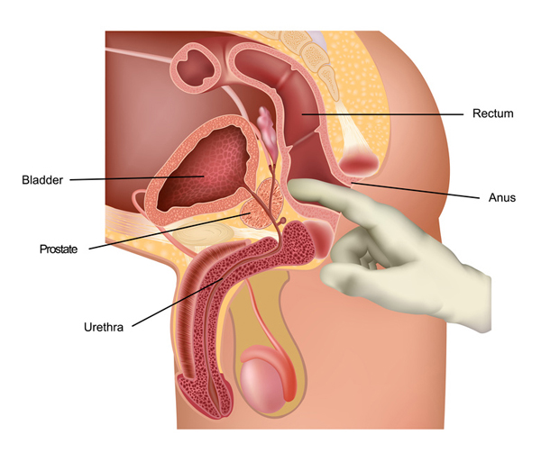 how the prostate digital rectal exam is performed