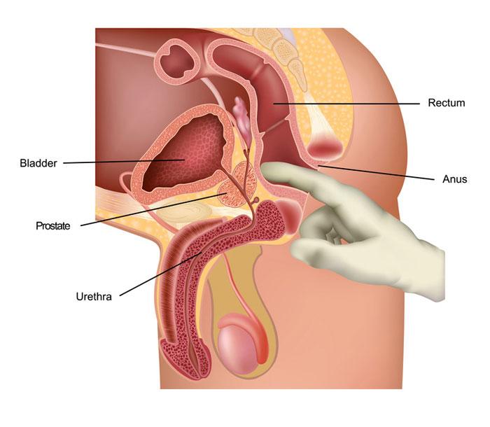 peyronies disease and prostate milking